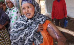 Ethiopia's Regional Violence Leaves Deep Wounds