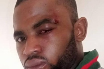 Paul Chouta sustained injuries in an attack some months before his detention in May 2019.